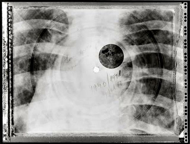 x-ray-music-01