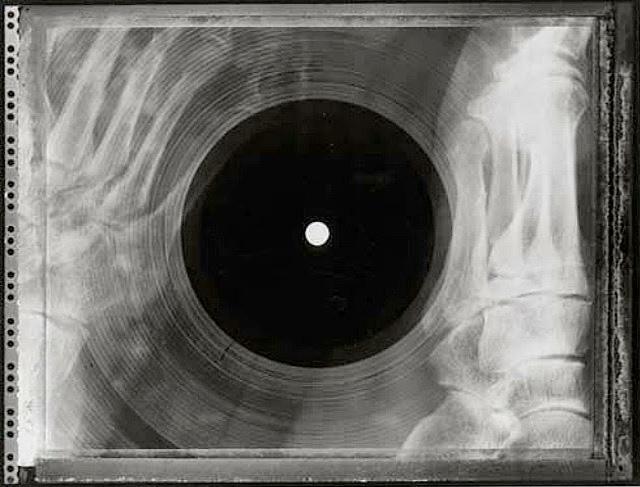 x-ray-music-02